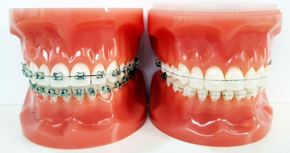 clear braces for adults